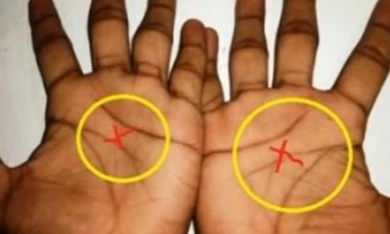 Tylko 3 Procent Ludzi Ma Literę X Na Obu Dłoniach Wiecie Co To